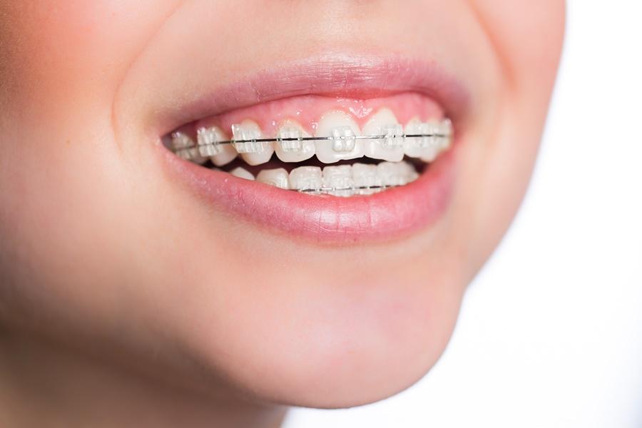 Translucent braces on teeth