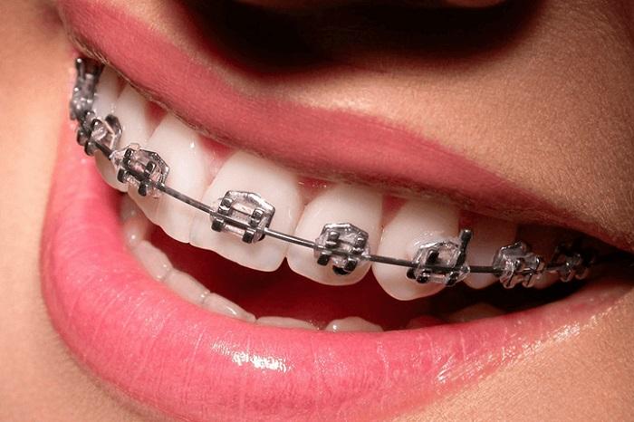 Traditional braces on teeth